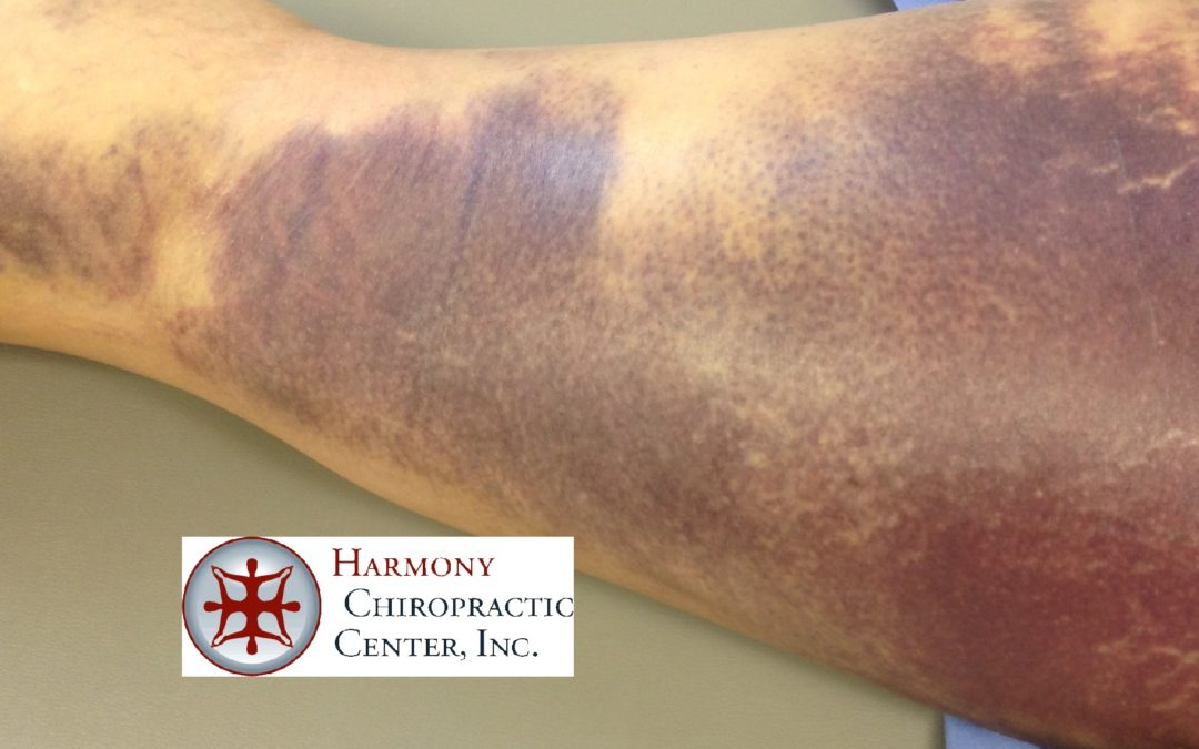 Large Bruise Drained Quickly by Kinesio Tape – Hamstring Tear