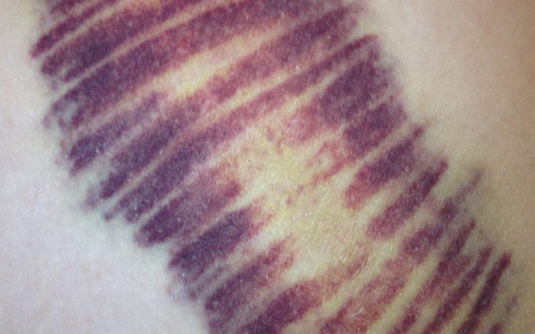 Kinesio Tape Drains Bruising