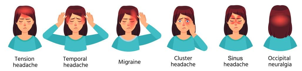 illustration of different types of headaches