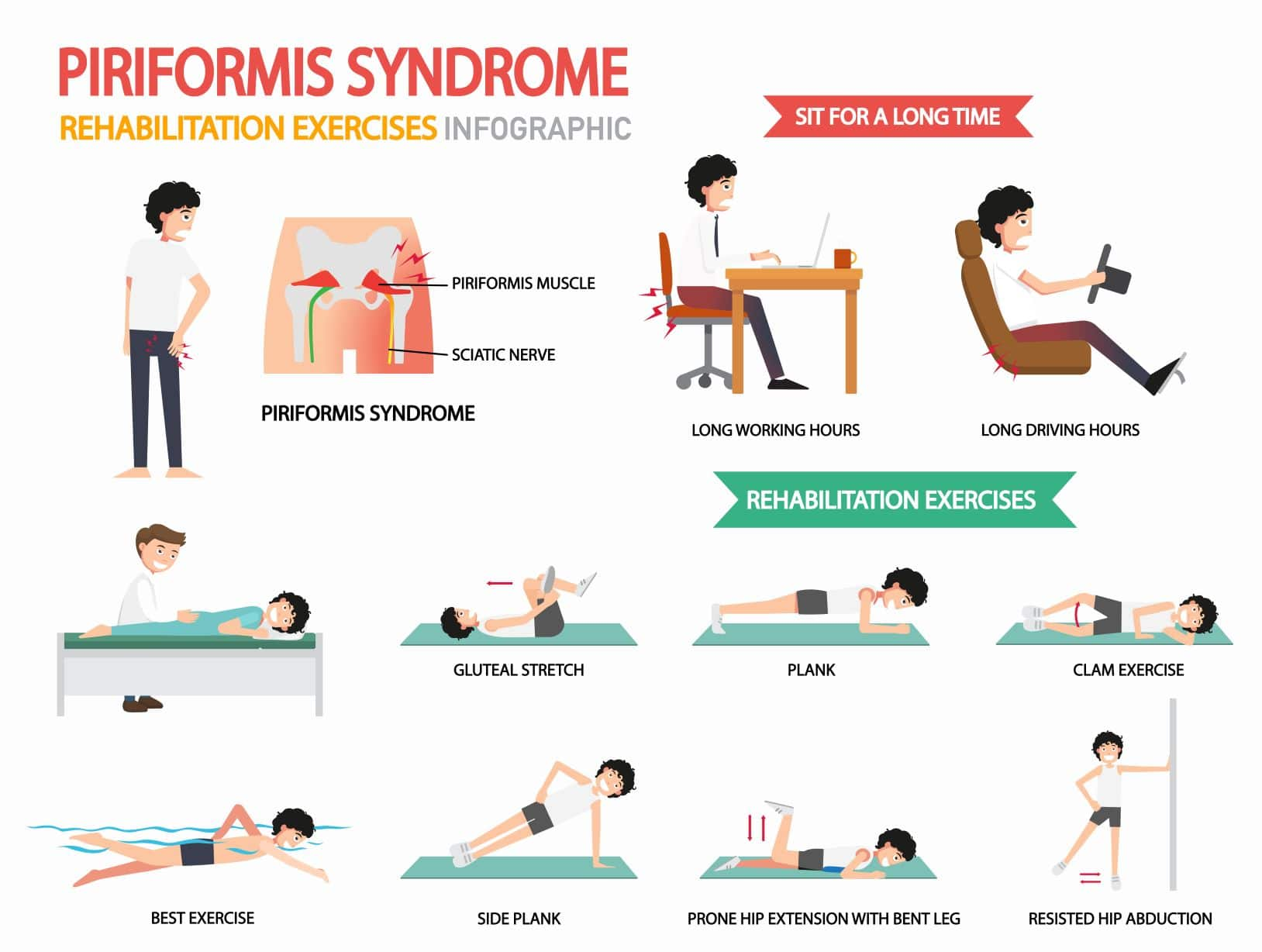 Information about Piriformis Syndrome