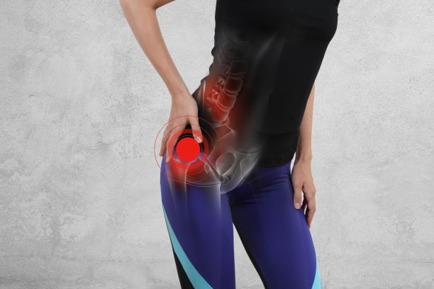 Piriformis Syndrome: What Should I Do?