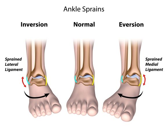 ankle and leg sprains in runners